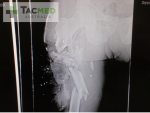 M855_Green_Tip_5.56mm_Ammo_Wound_X-Ray_TacMed_Australia_1